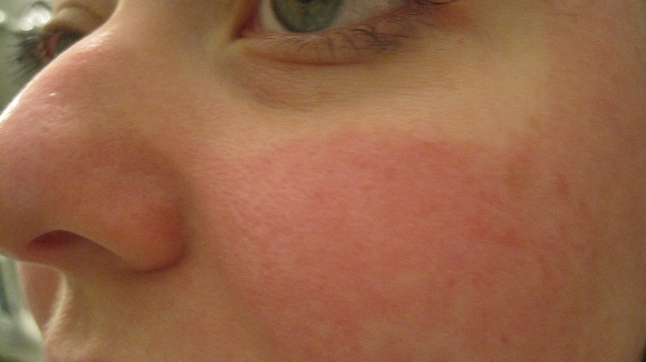 Indian Natural Ways To Get Rid Of Acne